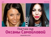 Оксана Самойлова до и после пластики скул