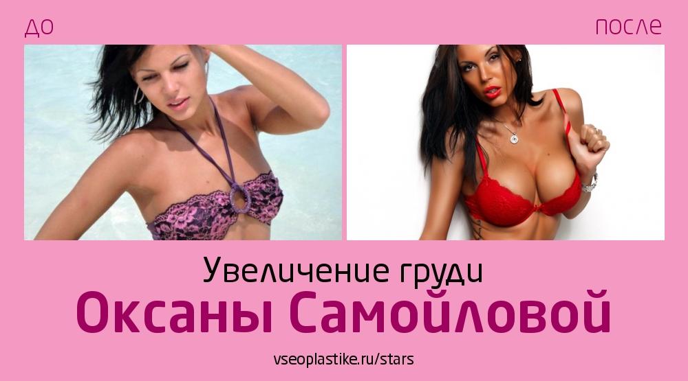 Оксана Самойлова до и после увеличения груди