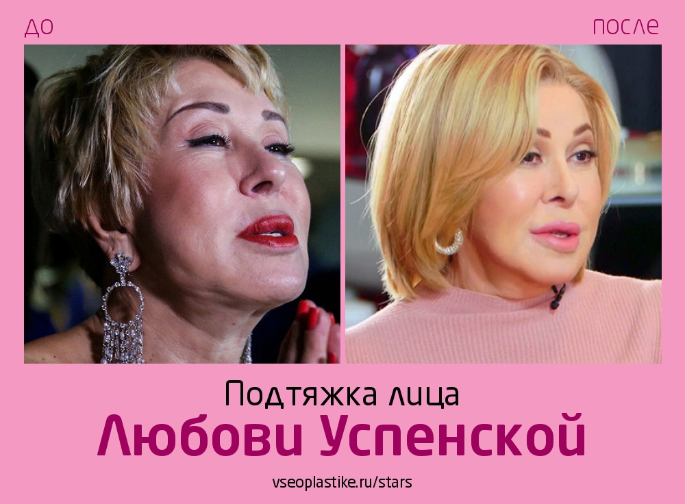 Любовь Успенская до и после подтяжки лица