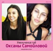 Оксана Самойлова до и после увеличения губ