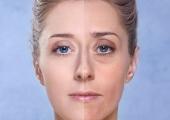 С возрастом усиливается асимметрия лица