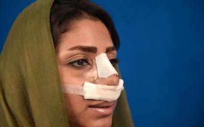 В Иране приняли закон о наказании для пациентов пластических хирургов.