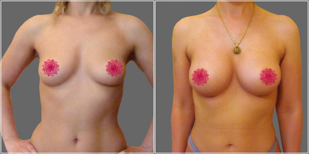 Пшонкина увеличение груди