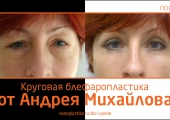 До и после круговой блефаропластики