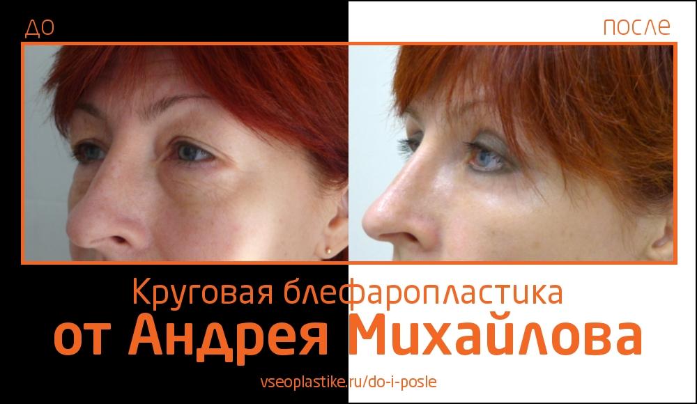 Пациентка после круговой блефаропластики у Андрея Михайлова