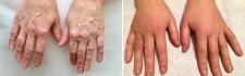 Пациентка доктора Стайсупова. Руки до и после липофилинга