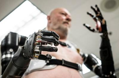 Бионическая реконструкция конечностей
