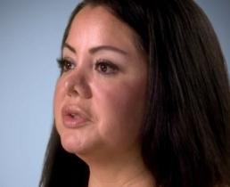 Хирург сделал ринопластику без ведома пациентки
