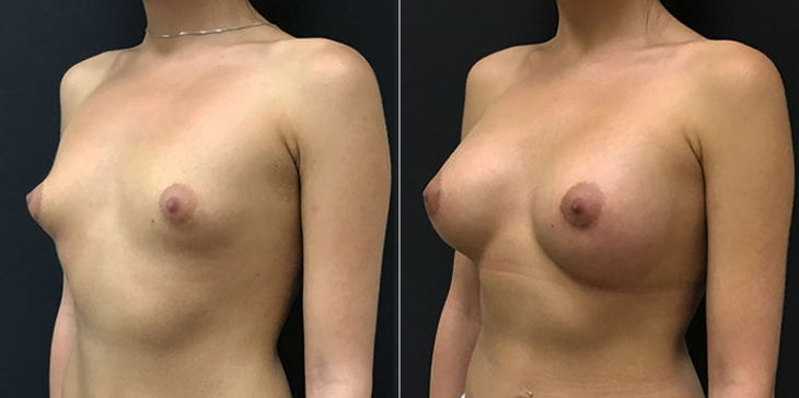Ованесова увеличение груди
