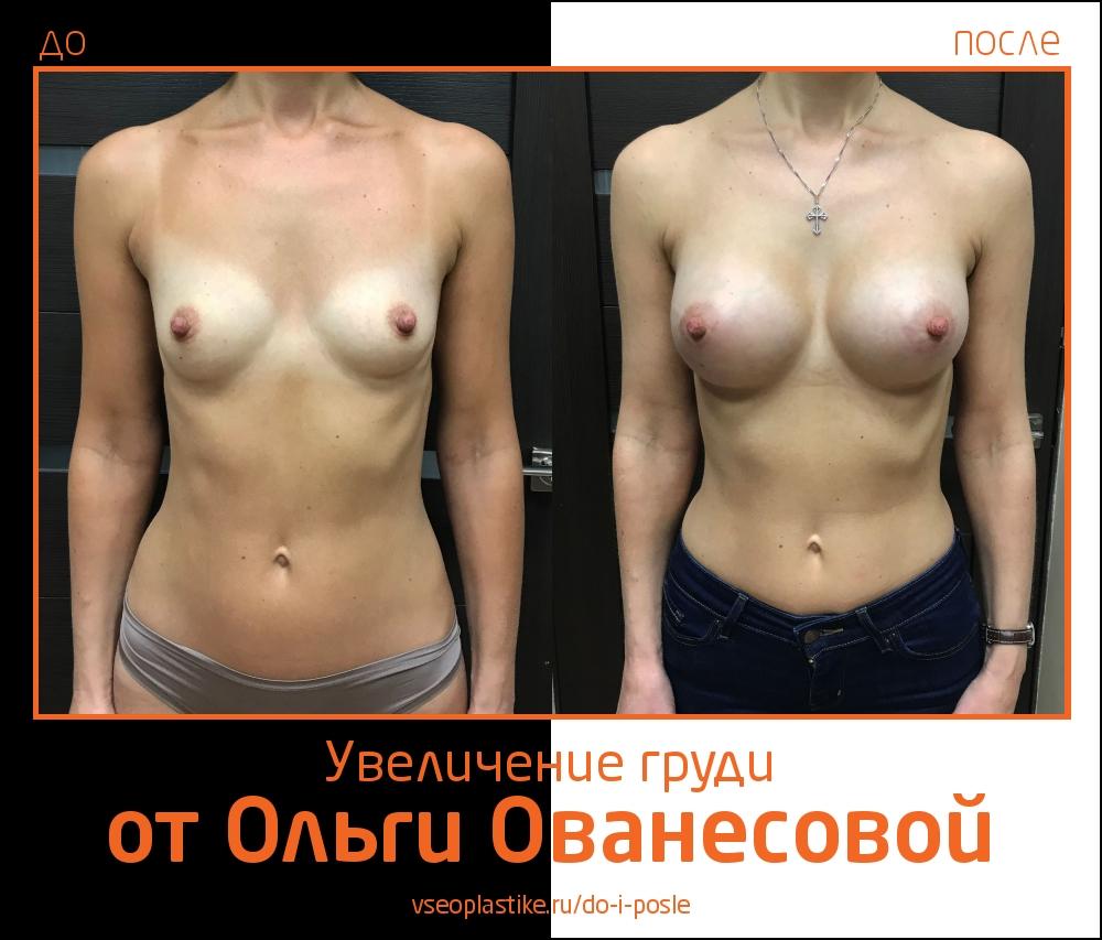 Ольга Ованесова. Увеличение груди