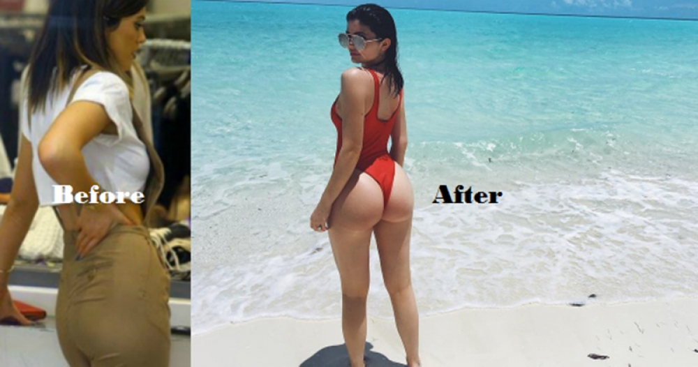 Кайли Дженнер до и после липофилинга ягодиц