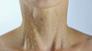 Биоревитализация шеи