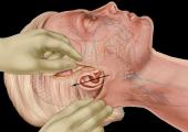 Можно ли после уколов Ботокса делать СМАС-подтяжку лица?