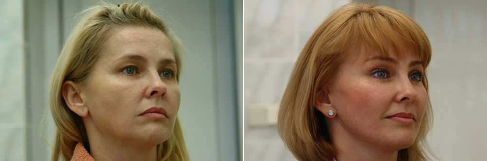 Тотальный лифтинг лица: эндоскопия лба, средней зоны лица, блефаропластика нижних век, СМАС-лифтинг лица