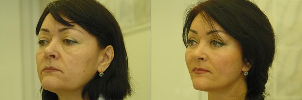 Тотальный лифтинг лица: эндоскопия лба, средней зоны лица, блефаропластика нижних век, СМАС-лифтинг лица, платизмопластика