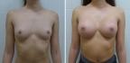 Андрей Михайлов. Увеличение груди