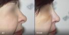 Фото пациентки до и после ринопластики у доктора Евгения Казанцева