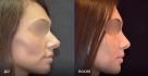 Пациентка до и после ринопластики у доктора Евгения Казанцева