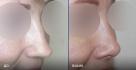 Фото до и после ринопластики у пластического хирурга Евгения Казанцева