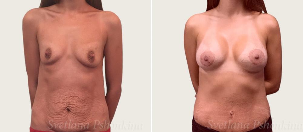 абдоминопластика и увеличение груди Пшонкина
