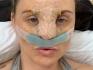 Фотографии Карлы сразу после ринопластики