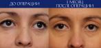 Фото «до и после» верхней блефaропластики