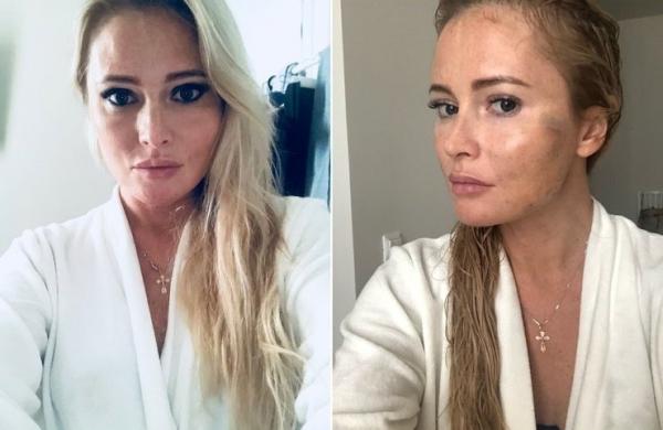 Дана Борисова до и после подтяжки лица нитями