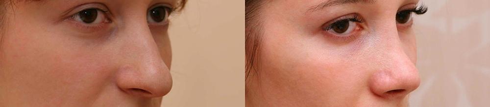 Фото до и после ринопластики у доктора Александра Жукова