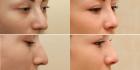 Фото до и после пластики носа у Александра Жукова