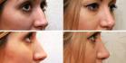 Фото до и после пластики носа у доктора Александра Жукова