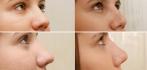 Снимки до и после пластики носа у доктора Александра Жукова