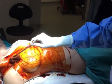Хирургическое уменьшение молочных желез