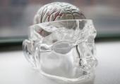 Гиперэластичные кости выведут краниопластику на новый уровень