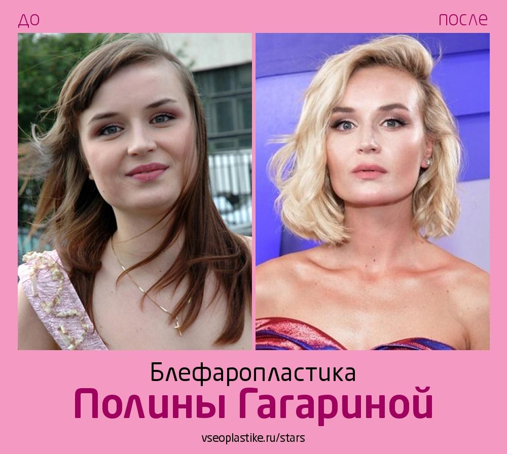 Полина Гагарина до и после блефаропластики