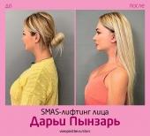 Дарья Пынзарь до и после SMAS-лифтинга