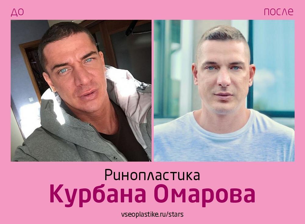 Курбан Омаров до и после ринопластики