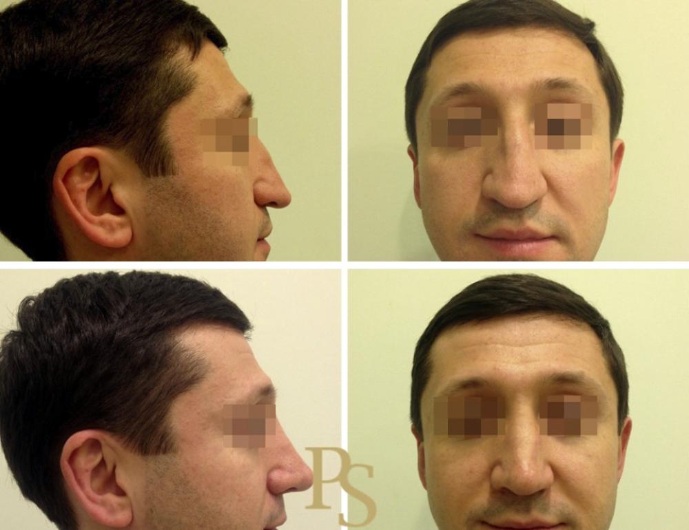 ринопластика для мужчины Светлана Пшонкина