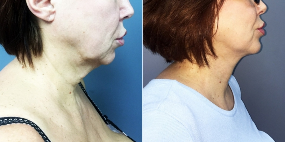 Пациентка Светланы Пшонкиной до и после омоложения шеи