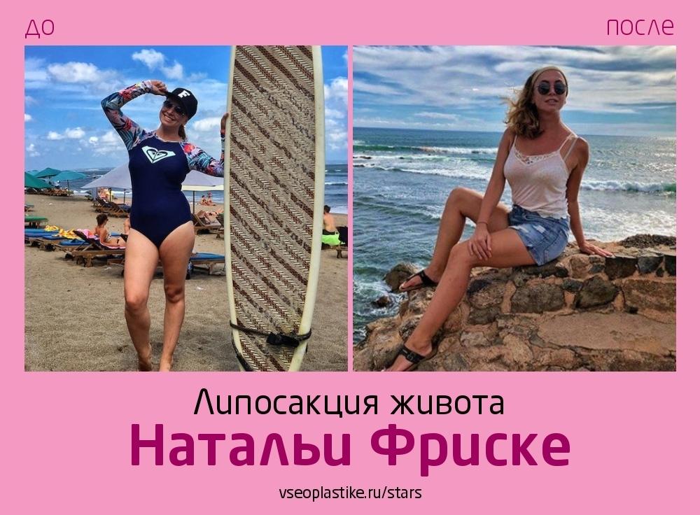 Наталья Фриске сделала липосакцию у пластического хирурга Владимира Косинца!