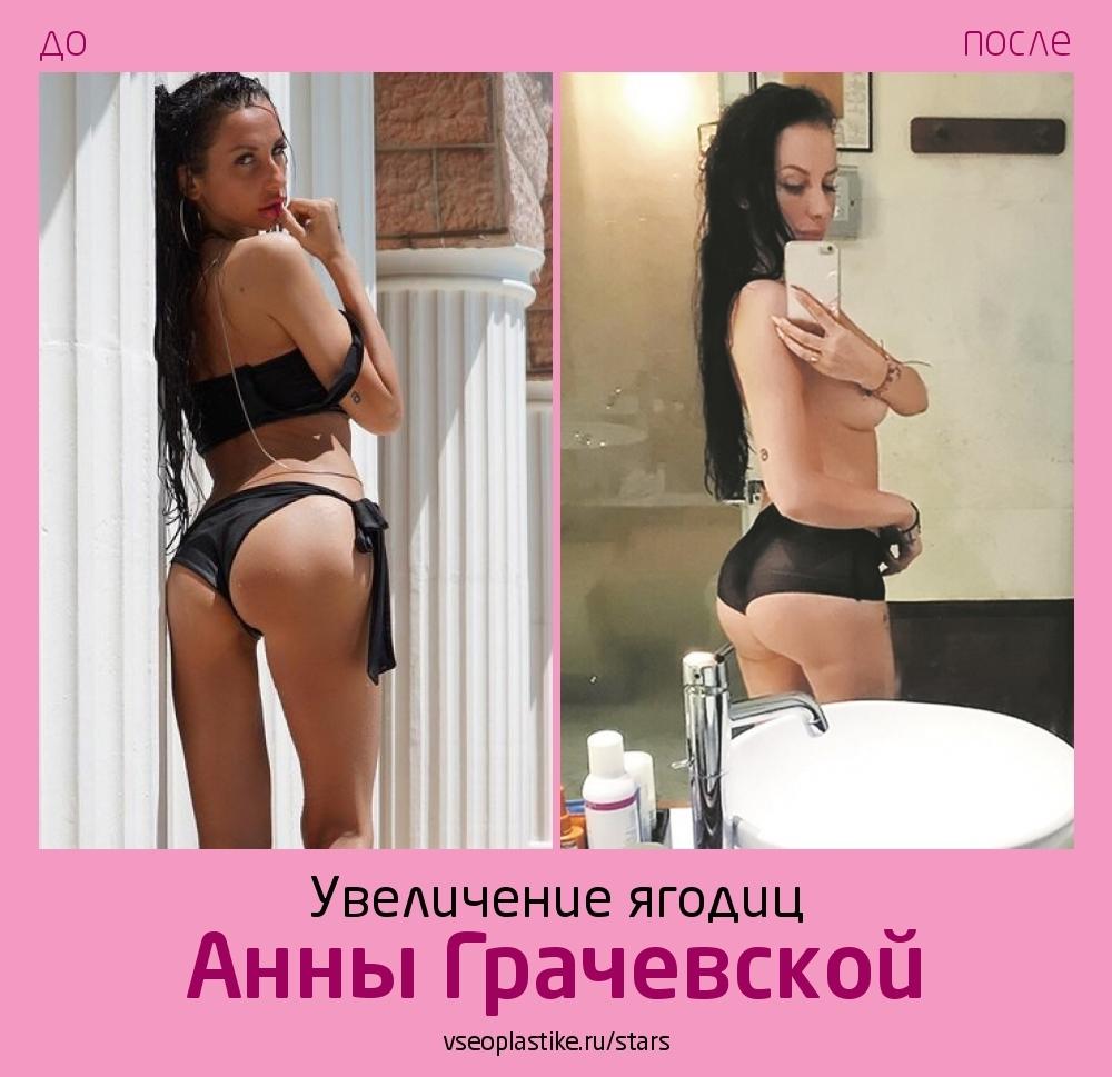Анна Грачевская до и после глютеопластики