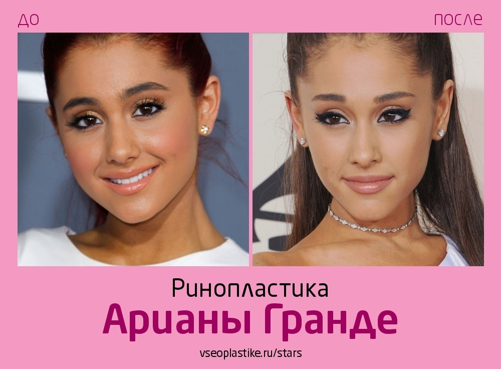 Ариана Гранде до и после пластики носа