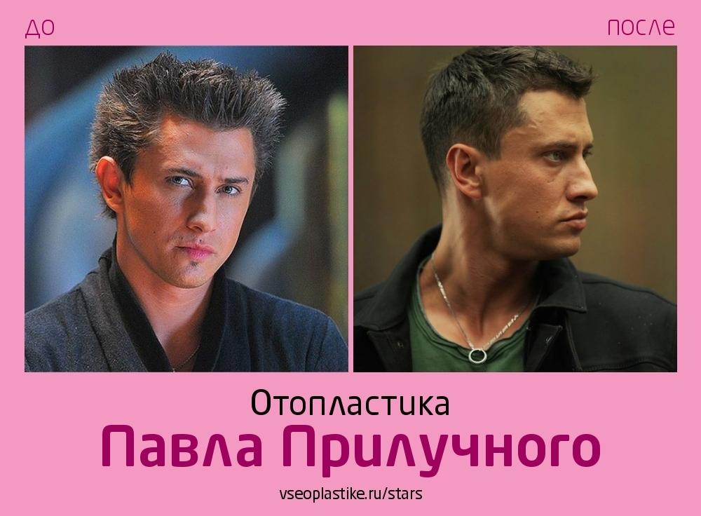 Павел Прилучный уши до и после