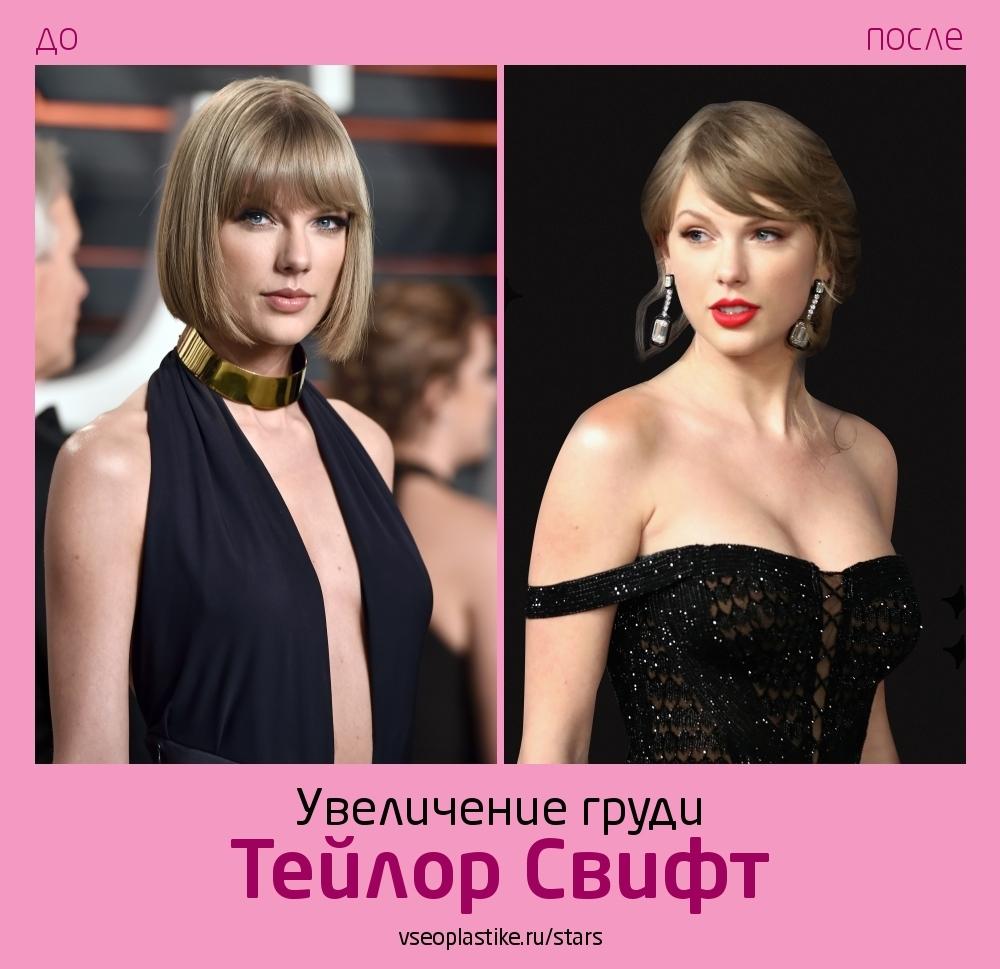 Тейлор Свифт до и после увеличения груди