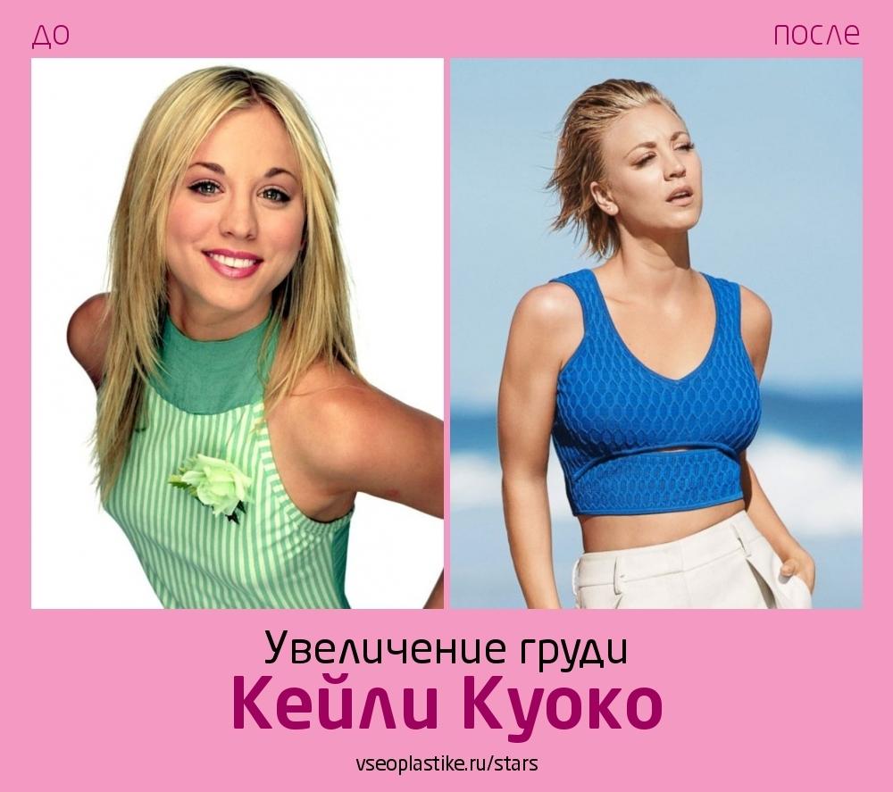 Кейли Куоко до и после увеличения груди