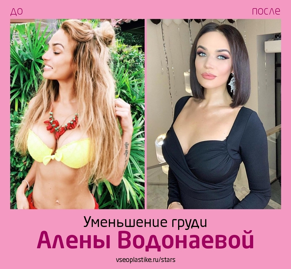 Алена Водонаева до и после уменьшения груди