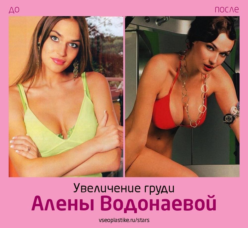 Алена Водонаева до и после увеличения груди
