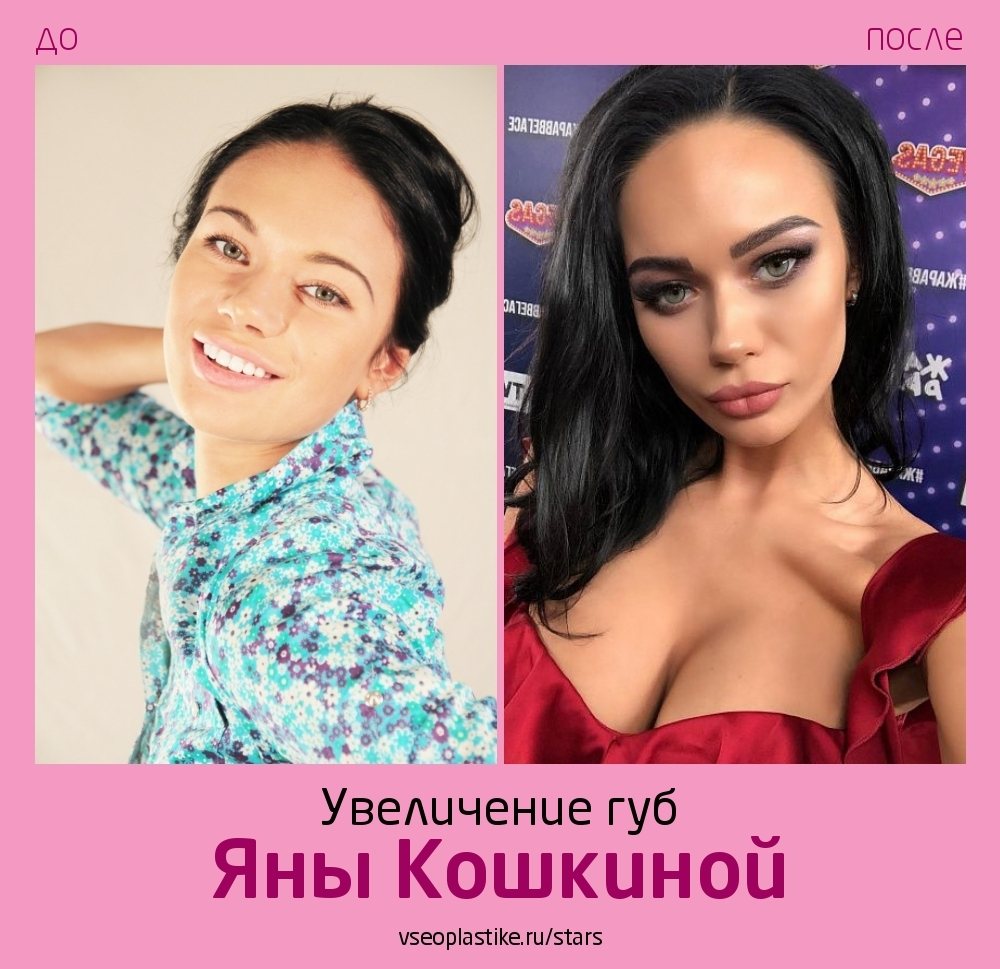 Яна Кошкина до и после увеличения губ