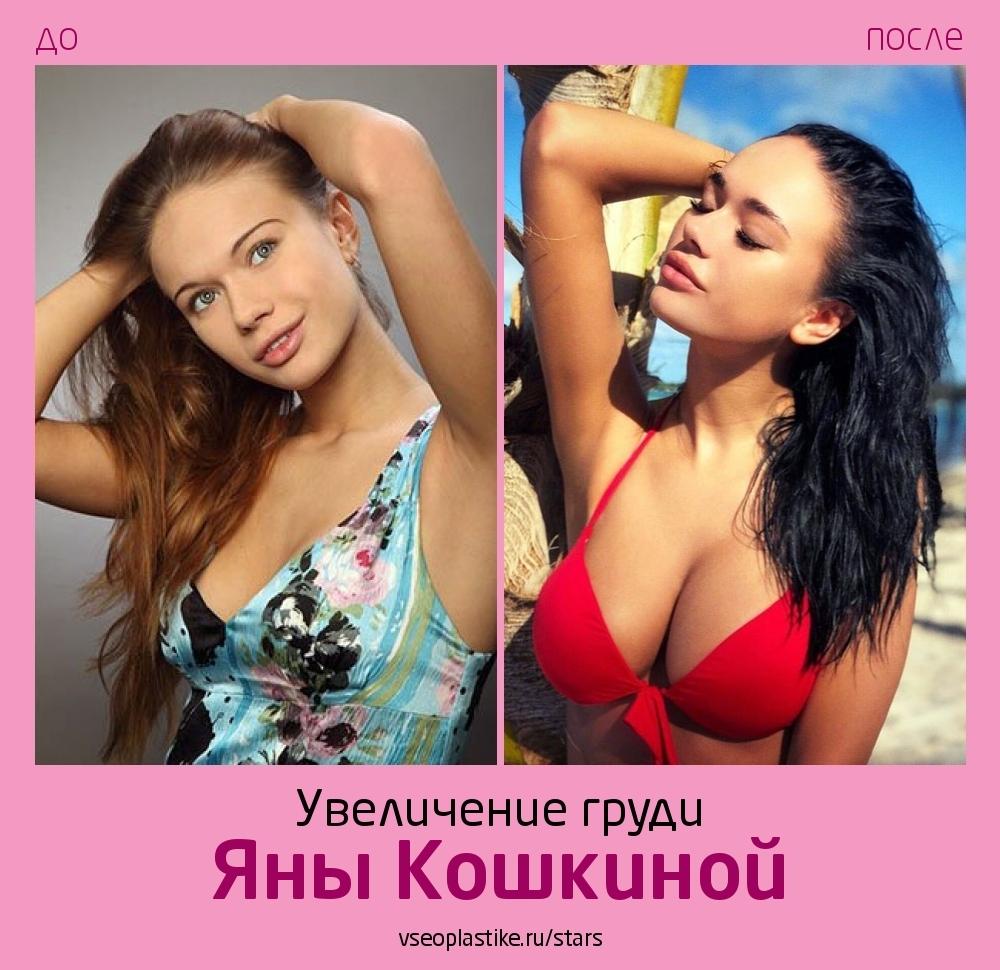 Яна Кошкина до и после увеличения груди