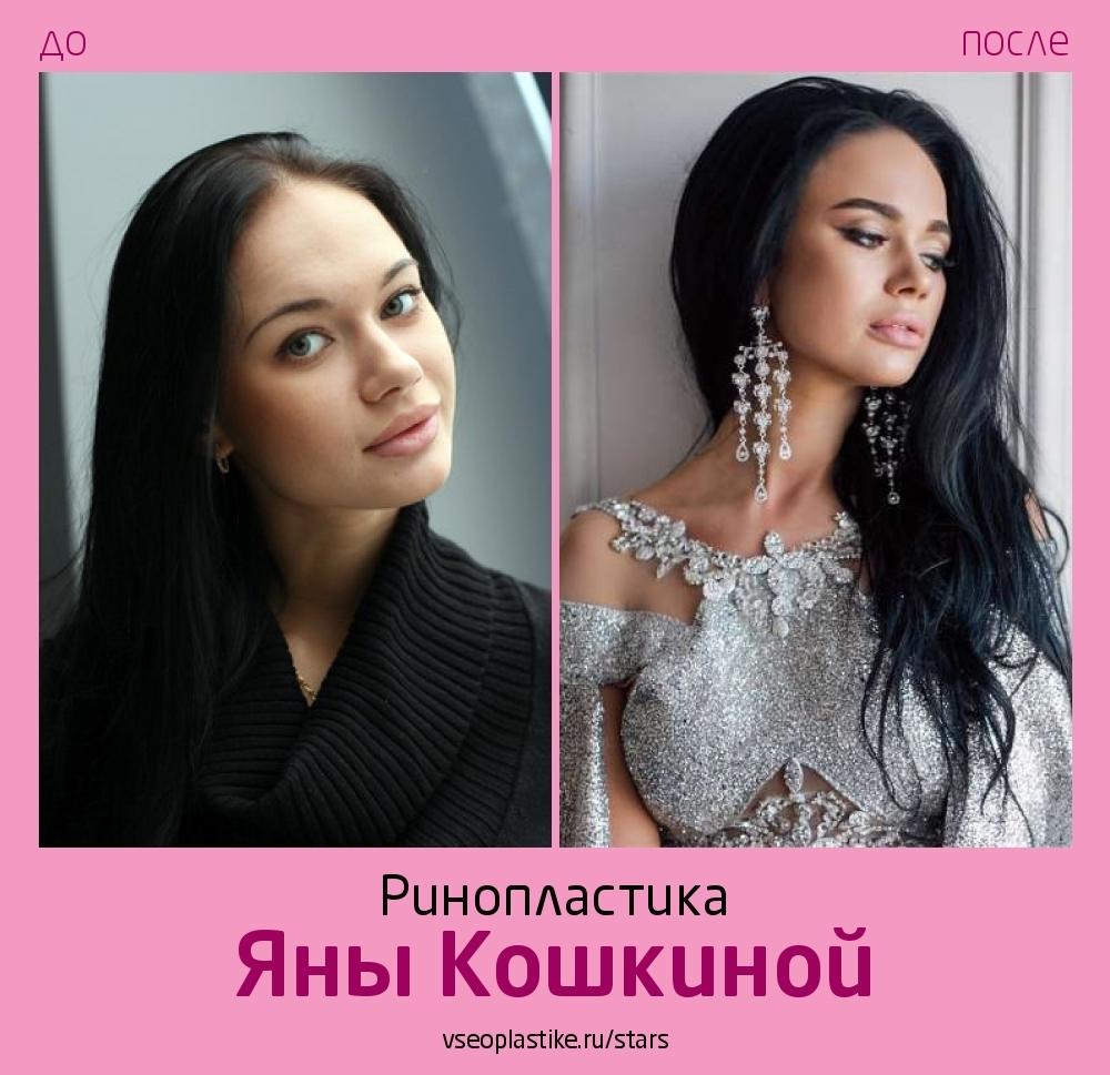 Яна Кошкина до и после ринопластики