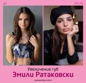 Эмили Ратаковски до и после увеличения губ